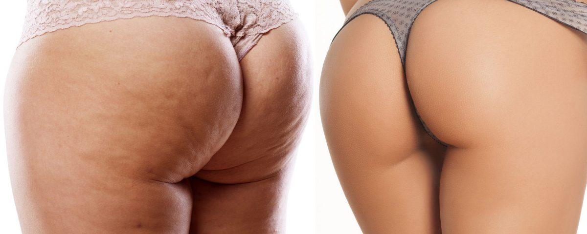 Liposukcja bez skalpela - bezoperacyjne usuwanie tkanki tłuszczowej laserem